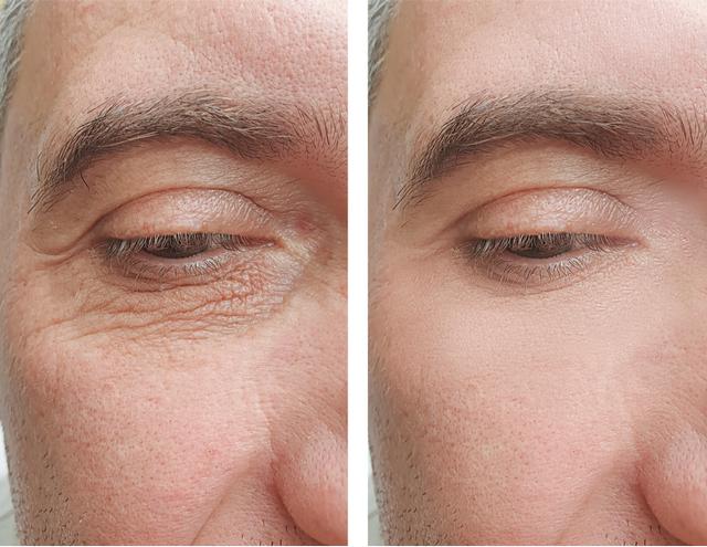 老けて見える目の下のたるみ。モテ顔になるためのアンチエイジング法3選