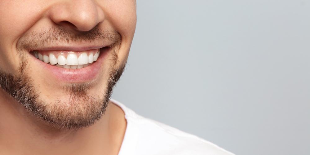 歯が綺麗な男になるための方法【2】歯列矯正