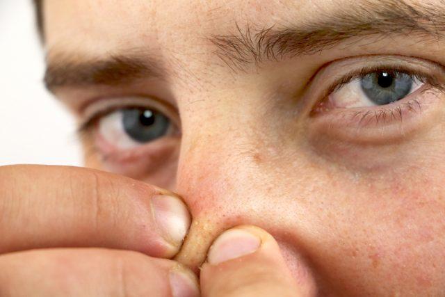 オイリー肌による皮脂の過剰分泌