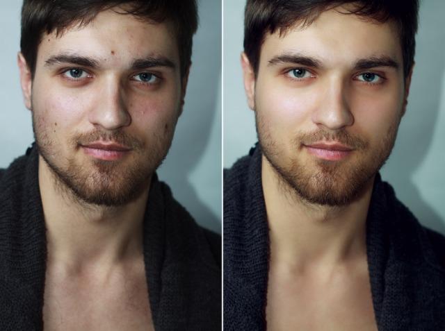 男性のアンチエイジング|メンズにおすすめのスキンケア対策4つ