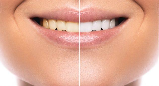 歯が綺麗な男になるための方法【1】ホワイトニング